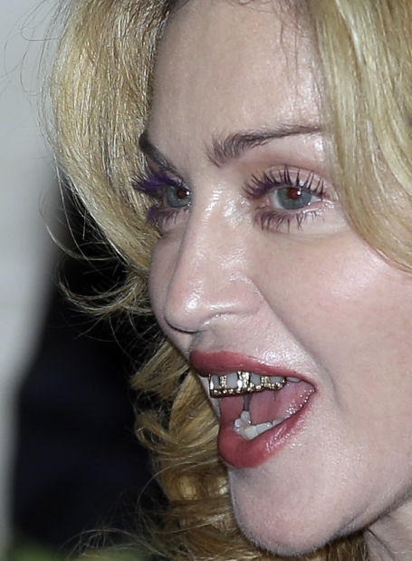 Photo: Madonna's tooth jewelry — flattering or not? | Latest .